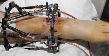 Broken, and stabilized lower leg